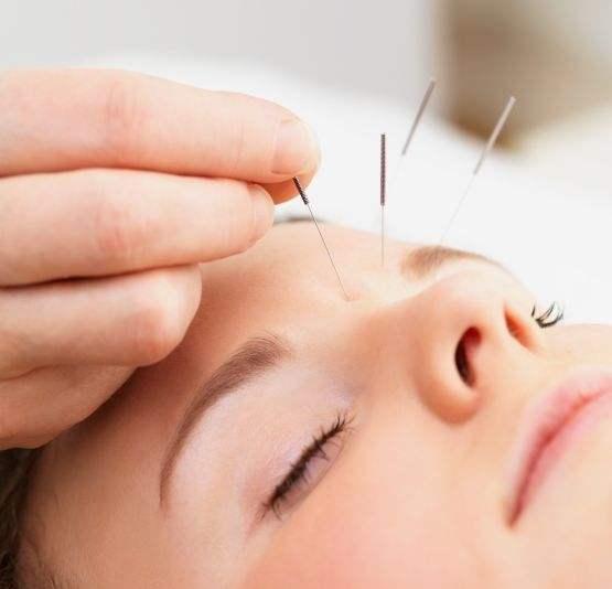 Acupuncture.Face